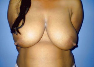 nude babe huge tits