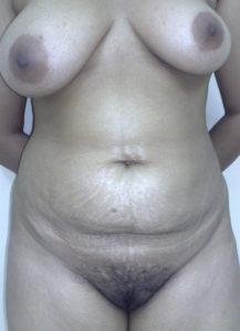 sexy nude boobs desi hottie